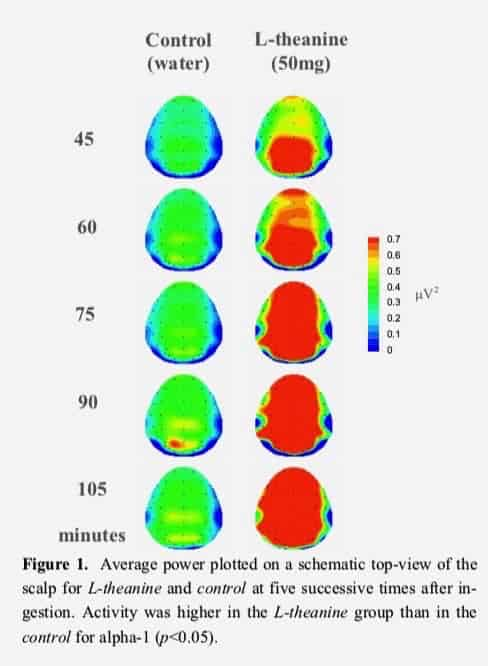 L-theanine brain imaging effects