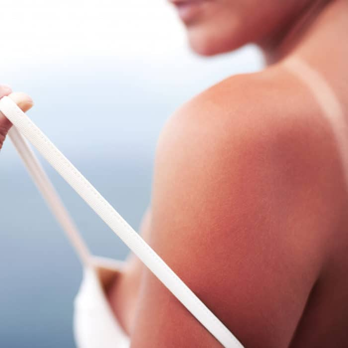 treat sunburned shoulder